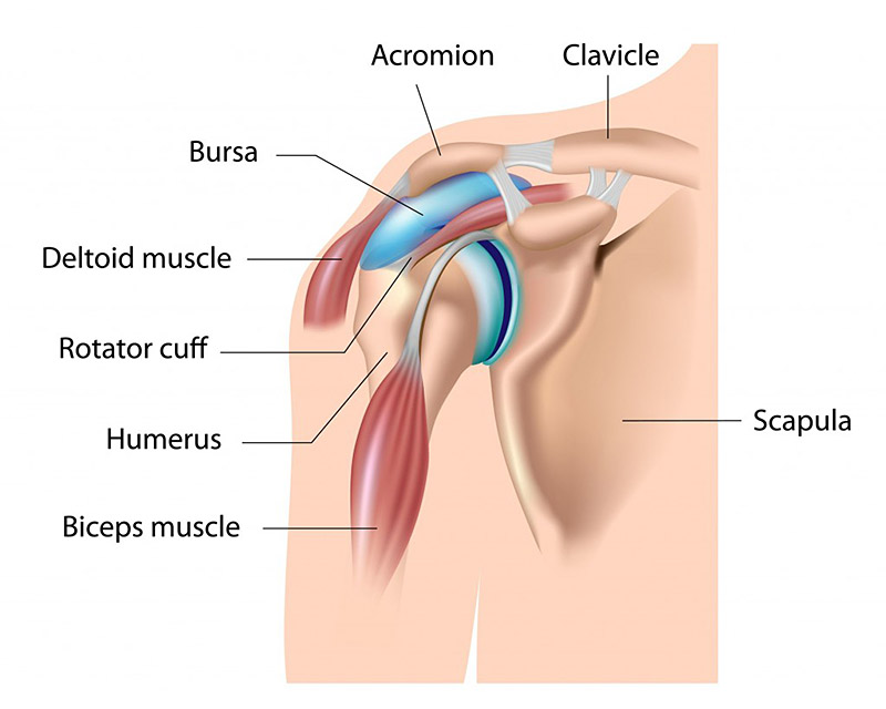 Bohsali shoulder impingement