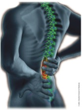 lower back pain Jacksonville