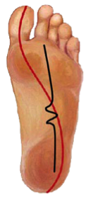 Picture of midfoot instability center of pressure in foot