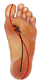 Picture of forefoot instability with torque center of pressure in foot