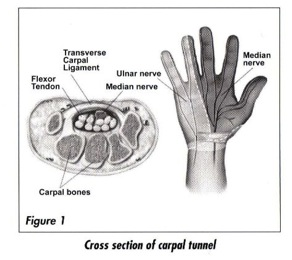 Understanding Carpal Tunnel