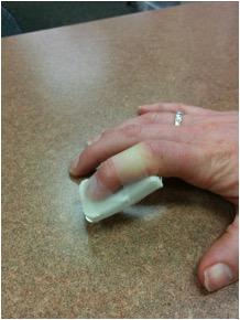 JOI Occupational therapy/CHT Jacksonville FL Homemade Finger Splint