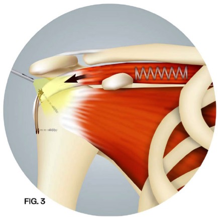 Repairing Rotator Cuff Tears with Arthroscopy