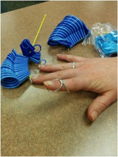 JOI rehab silver ring splint JOI Occupational therapy/CHT Jacksonville FL