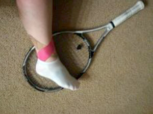 Ankle Sprains in Tennis
