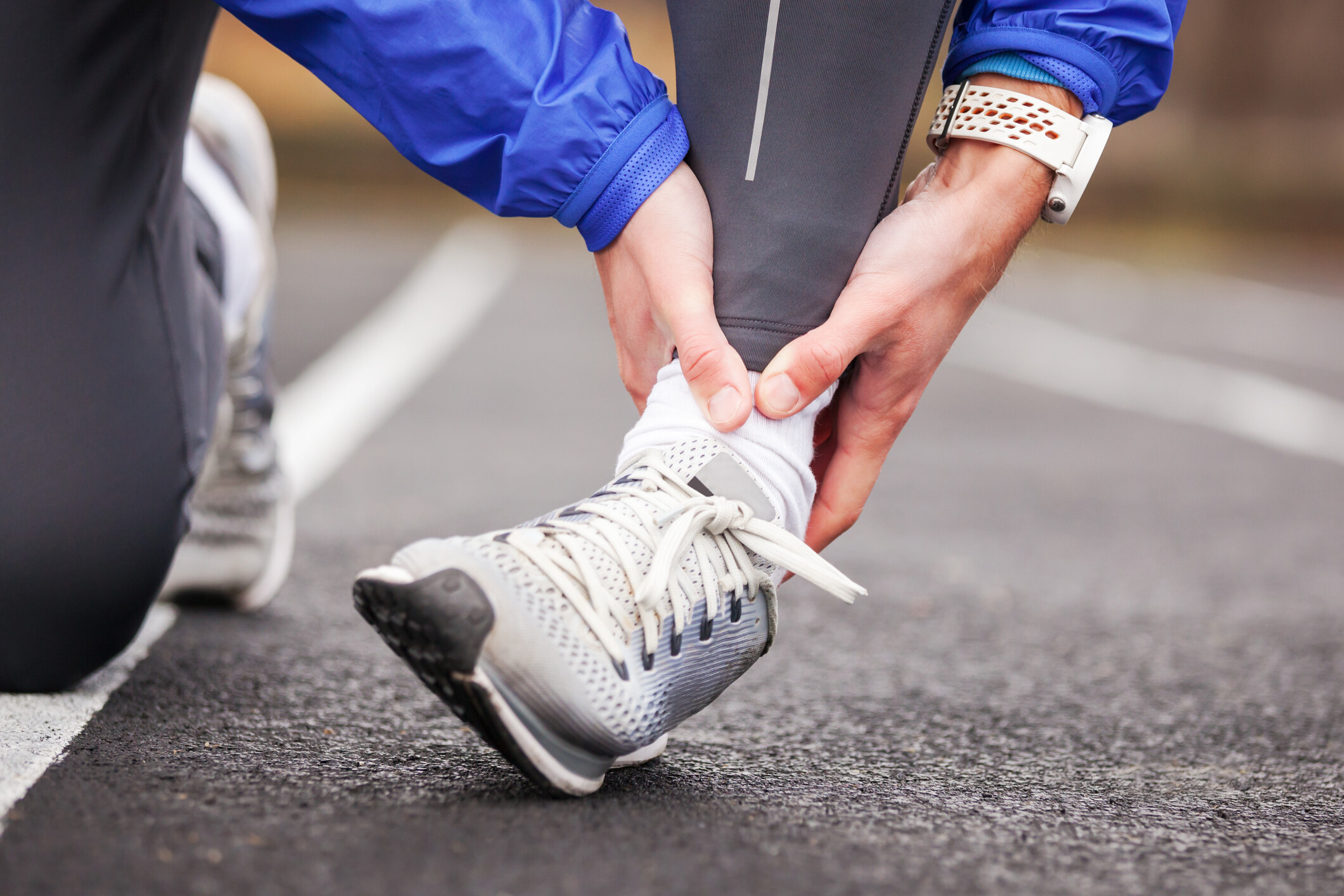 Degrees of Joint Sprains vary according to the injury.