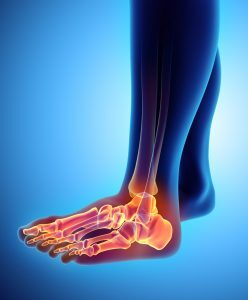 Bunions can be debilitating, read what you should do here.