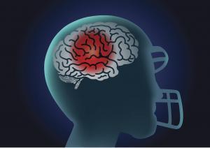 Concussion Graphic