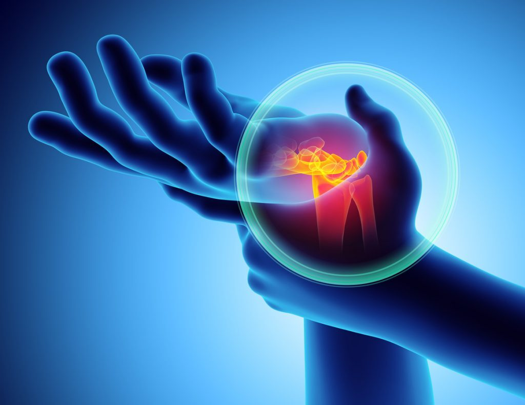 JOI Rehab Treatment of carpal tunnel