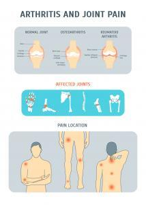 Arthritis can affect many areas of the body.