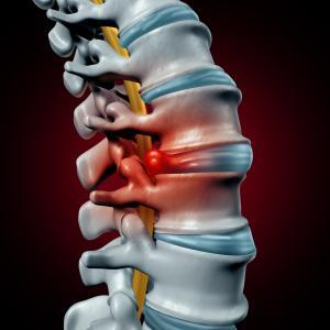 Herniated Disc Graphic