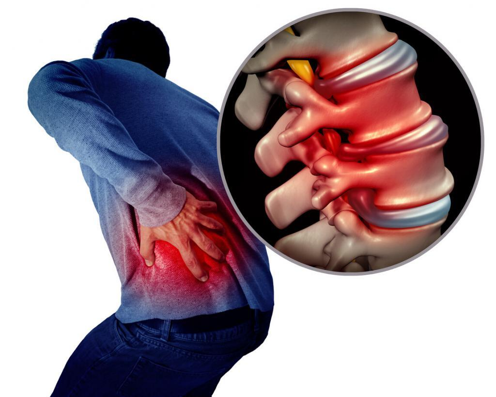 Common Lumbar Surgical Procedures are necessary for some conditions.