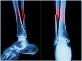 Fibular fracture image