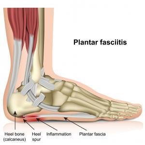 Anatomy of the foot and plantar fascia.