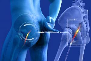 What causes sciatic nerve pain