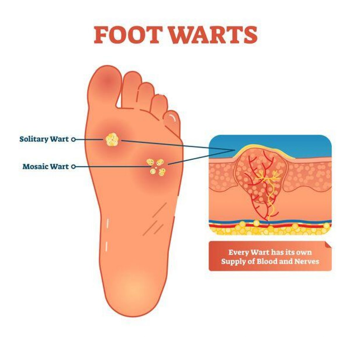 wart on foot palm)